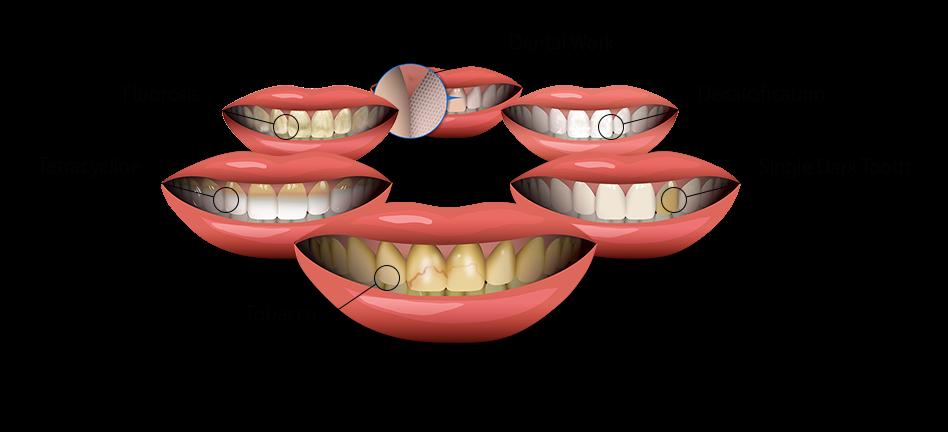 1 - انواع لکه های روی دندان ها و درمان های آنها