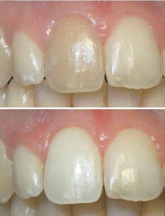 10 - بلیچینگ داخل دندان