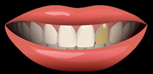 لکه دندان و درمان آن