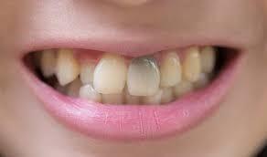 بلیچینگ داخلی دندان یا سفید کردن داخلی دندان