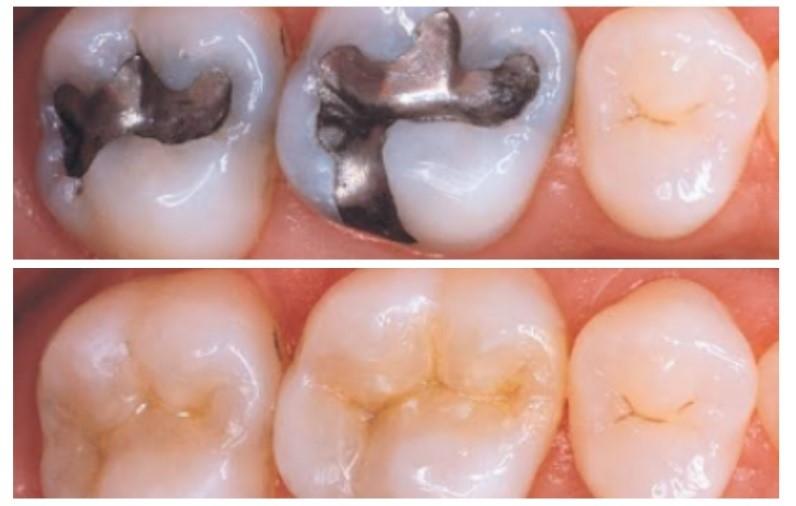9 - پر کردن دندان با کامپوزیت و آمالگام