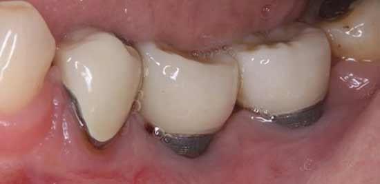 17 - عفونت ایمپلنت های دندانی