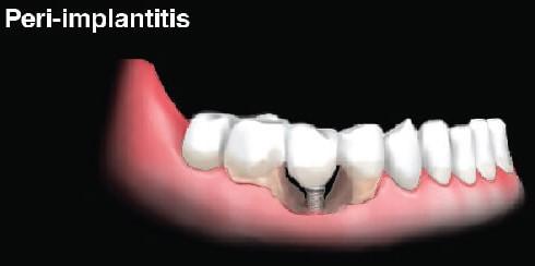 عفونت ایمپلنت های دندانی