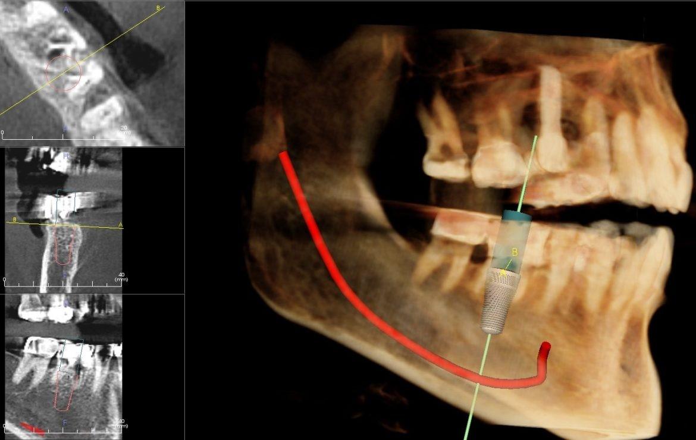 مشکلات پس از کشیدن دندان