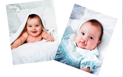 4 - شکاف کام و لب (لب شکری) در نوزادان