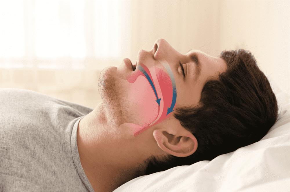 4 - ارتباط بین سلامت دهان و آپنه خواب