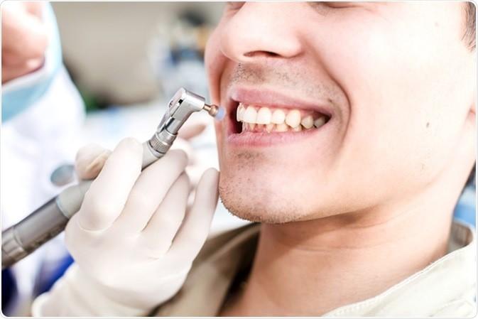 8 - آنچه باید در مورد پولیش دندان بدانید