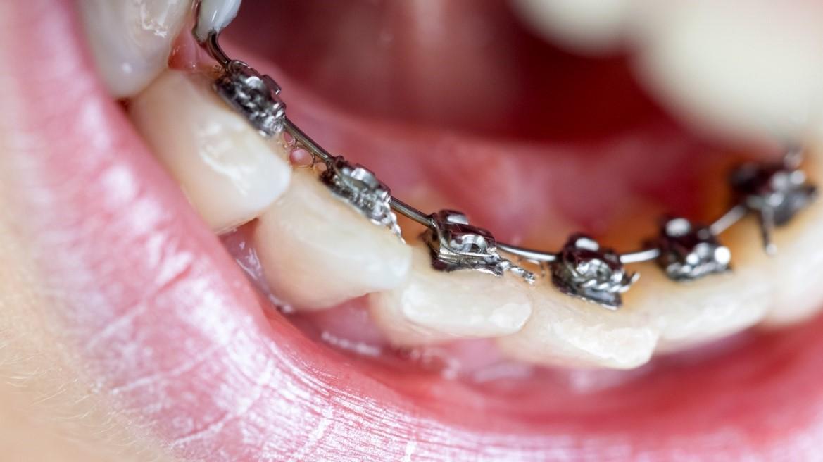 درمان کجی دندان