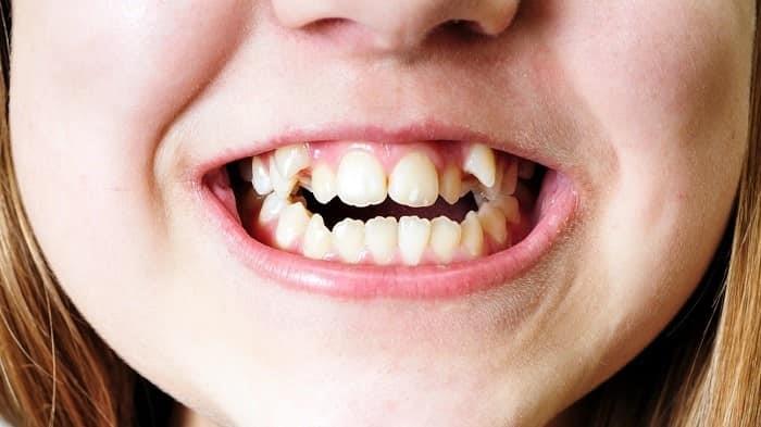 15 - کجی دندان ها و اهمیت درمان آن