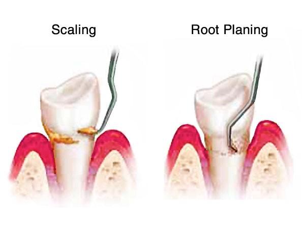 32 1 - جرمگیری و تسطیح سطح ریشه