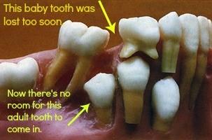 دندان های شیری