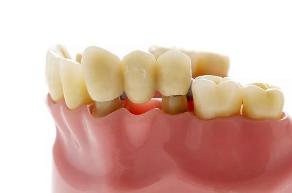 6 - بریج دندان چیست؟