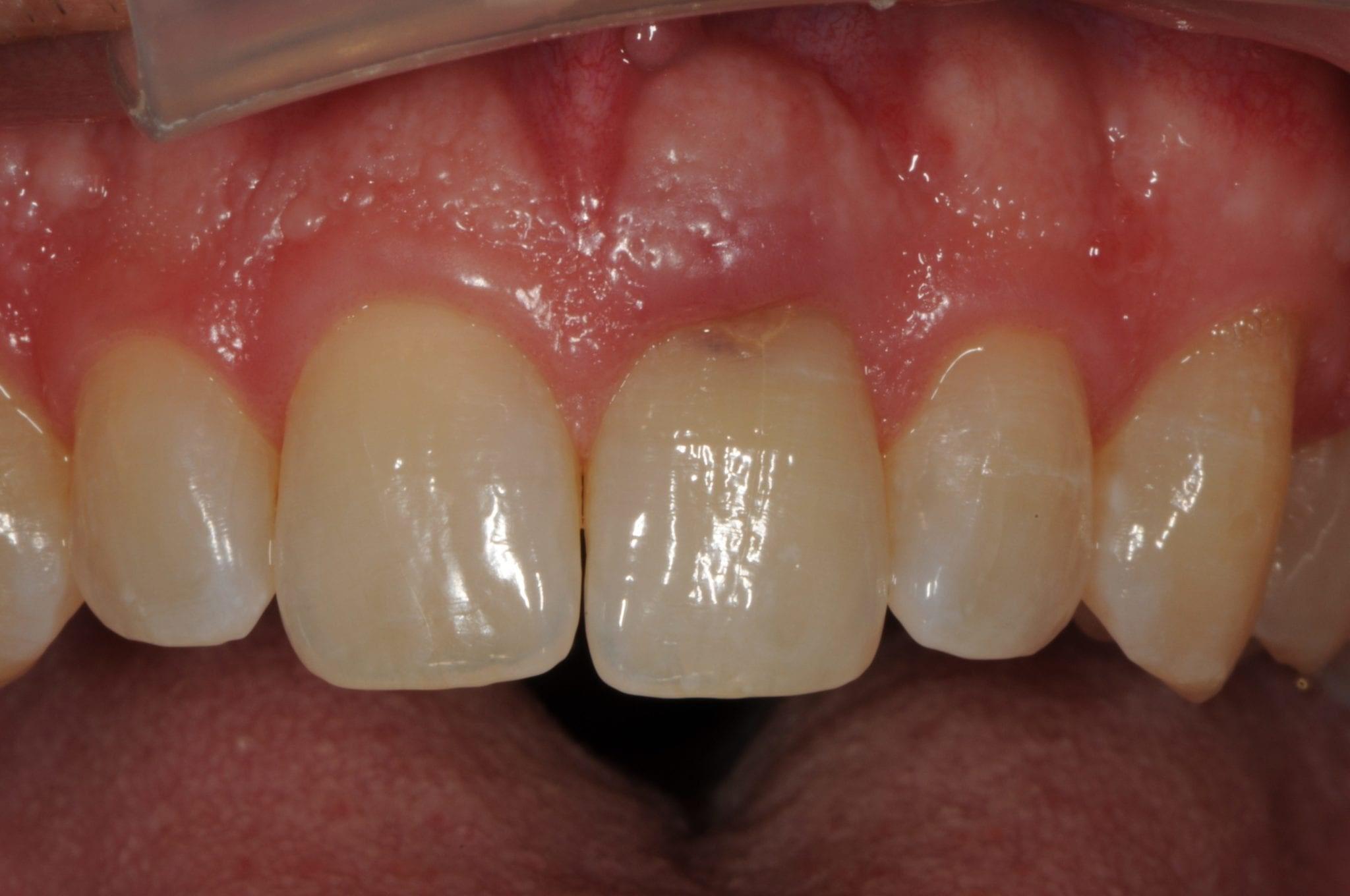 6 - تحلیل دندان چیست؟
