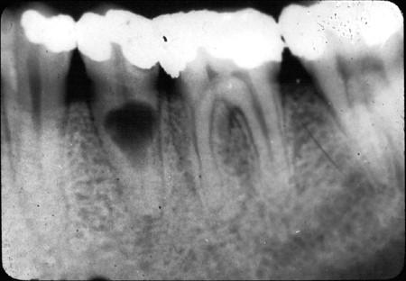 تحلیل دندان