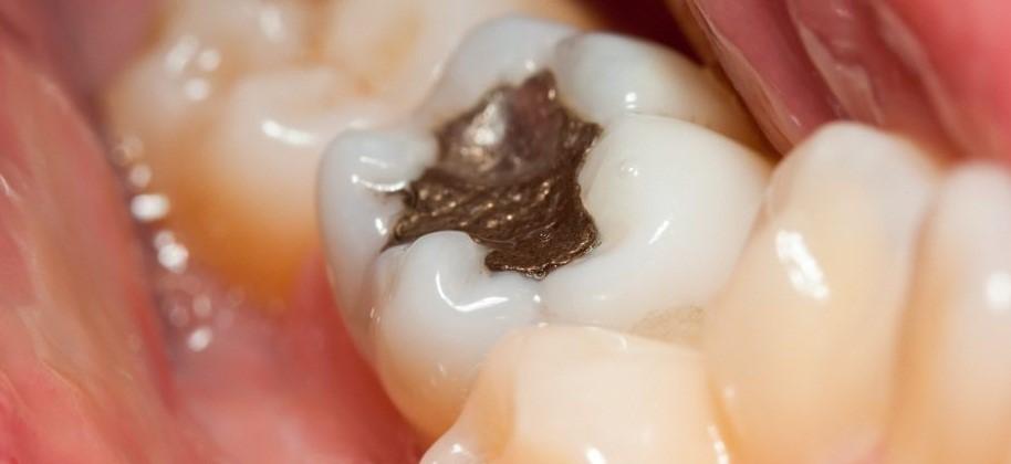 حساسیت دندان پس از پر کردن دندان
